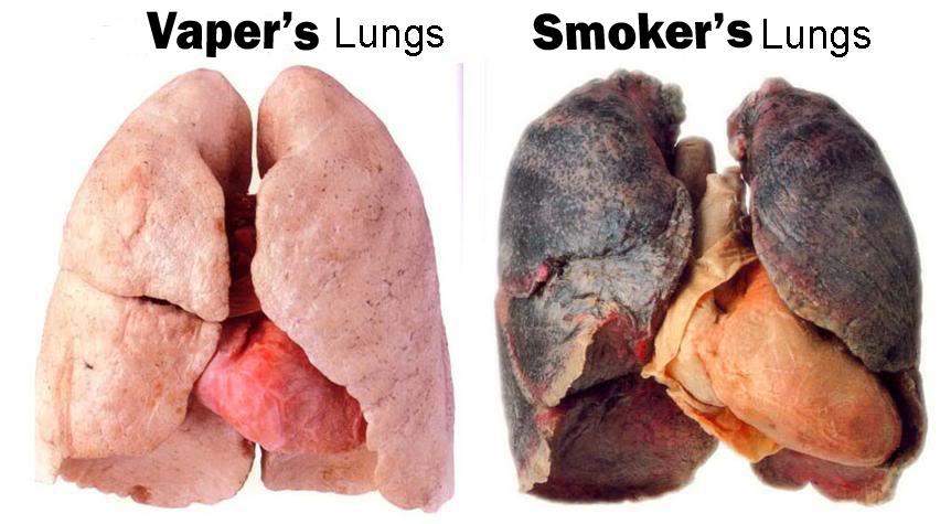 vapers lungs